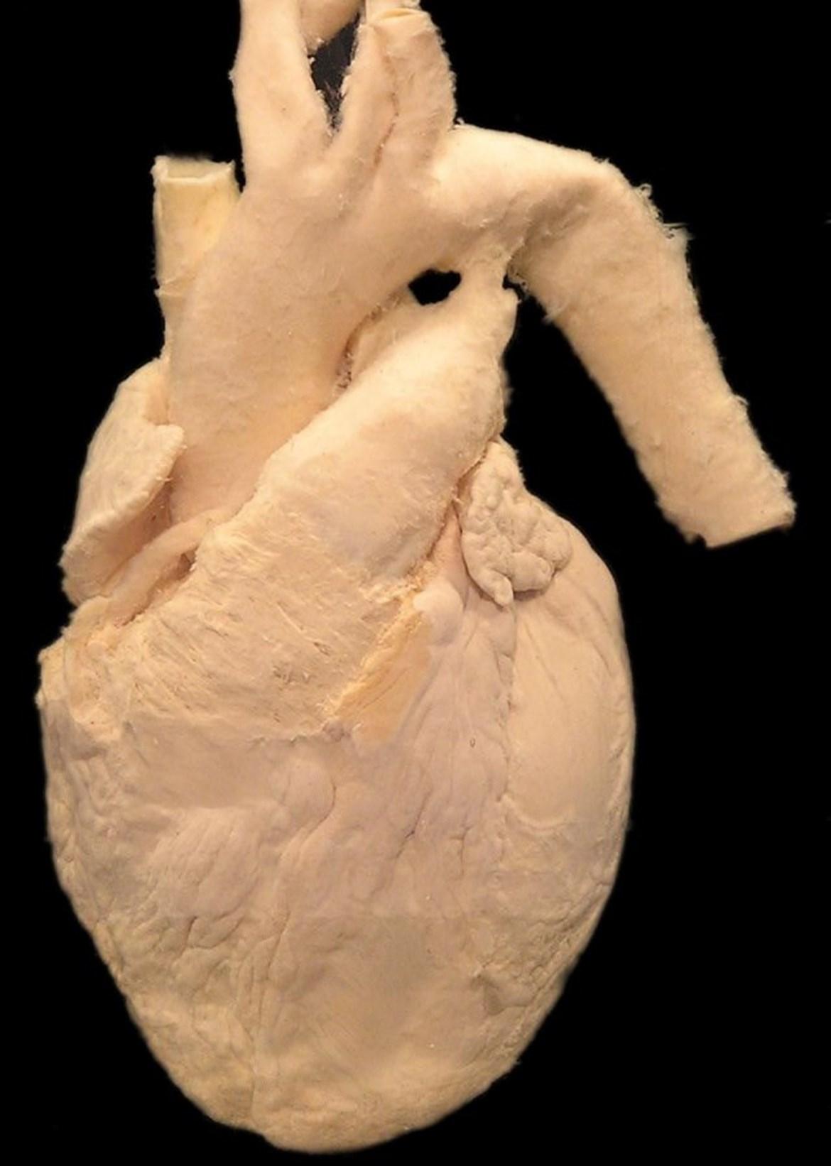 Lidské srdce s velkými cévami (aorta, truncus pulmonalis, horní dutá žíla)