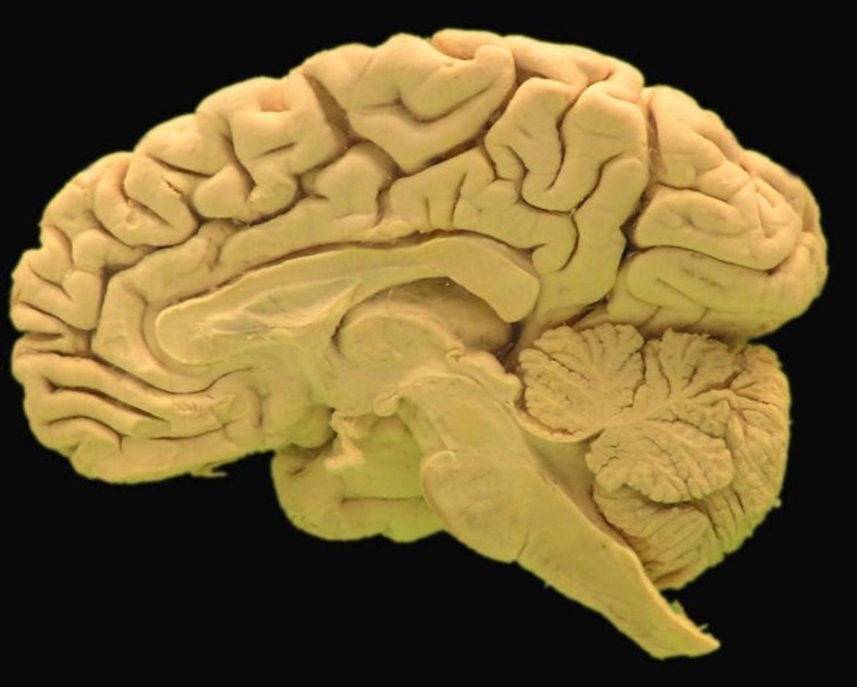 Vnitřní plocha mozkové hemisféry pravé strany dospělého jedince