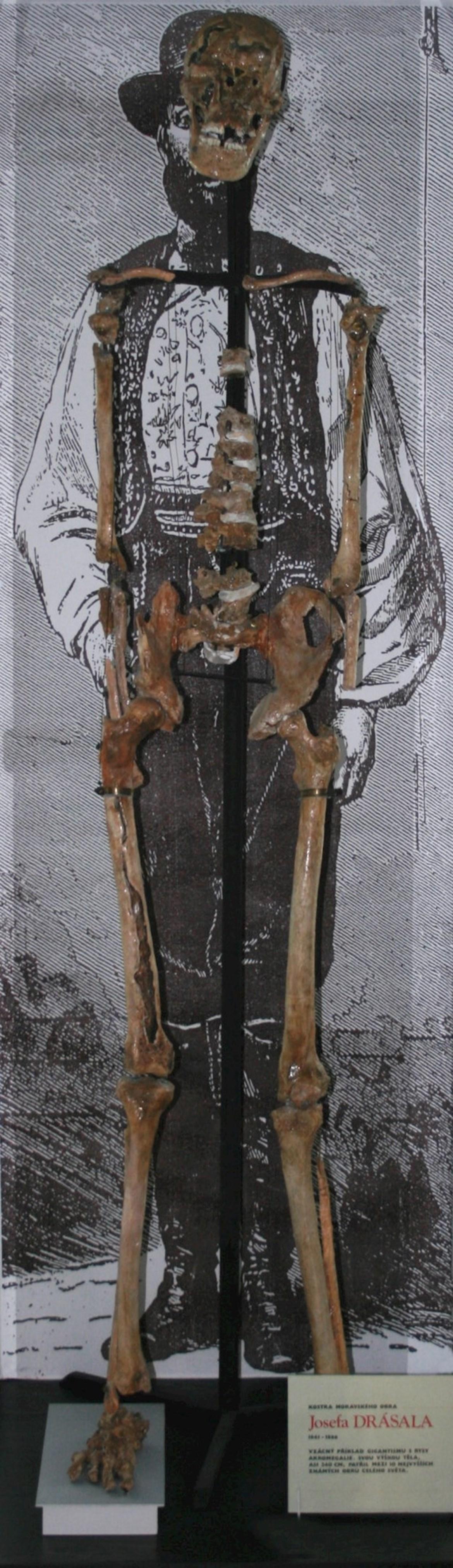 Kopie kostry moravského obra Josefa Drásala (výška 240 cm)