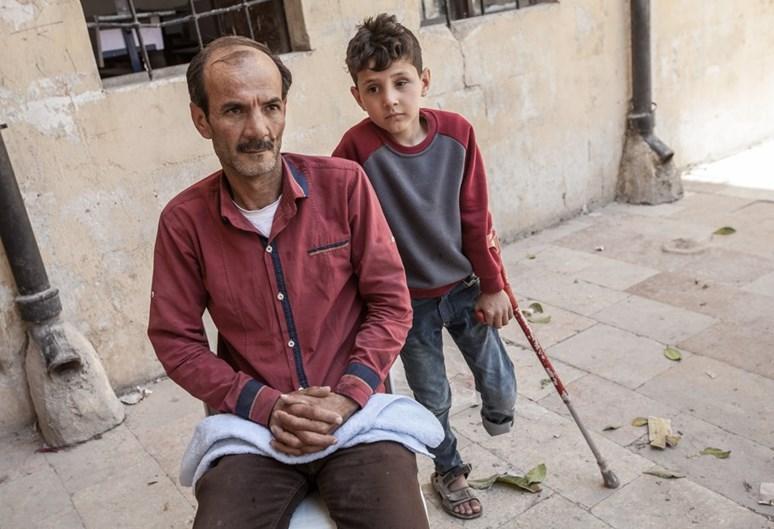 Otec se synem, který přišel o končetinu. Působení humanitárních organizací v zemi je jen velmi omezené. Archiv Markéty Kutilové