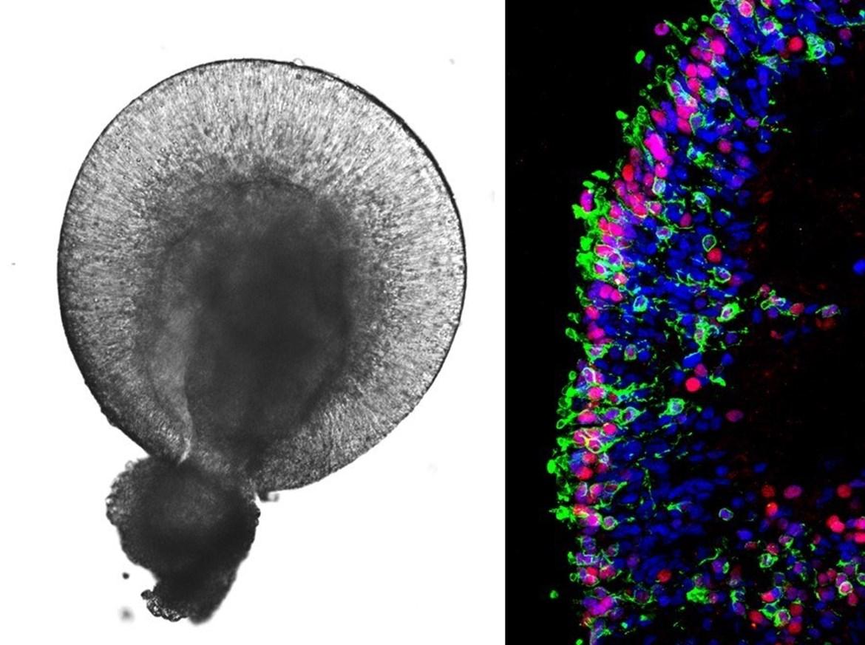Obrázek 1: Retinální organoidy