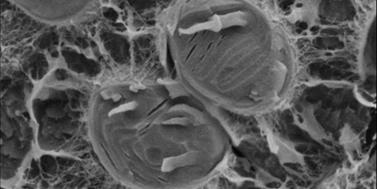 Pozvánka na workshop opokročilých metodách elektronové mikroskopie