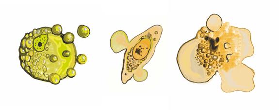Morfologie apoptózy, nekrózy a onkózy. Balvan J. et al. (2015) Multimodal Holographic Microscopy: Distinction between Apoptosis and Oncosis. PLoS ONE 10(3): e0121674. doi:10.1371/journal.pone.0121674.