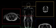 Anthropologists from the Faculty of Science at MU have begun aunique project focused on the body shape and composition of the Czech population