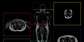 Antropologové zPřírodovědecké fakulty MU začali řešit unikátní projekt zaměřený na tvar asložení těla české populace
