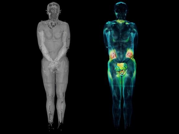 Vliv civilizace na tvar a složení těla