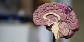 Brno research institutes team up to improve stroke treatment and diagnosis