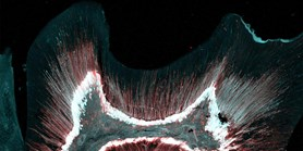 Atlas zubních buněk může otevřít cestu k regeneraci zubů